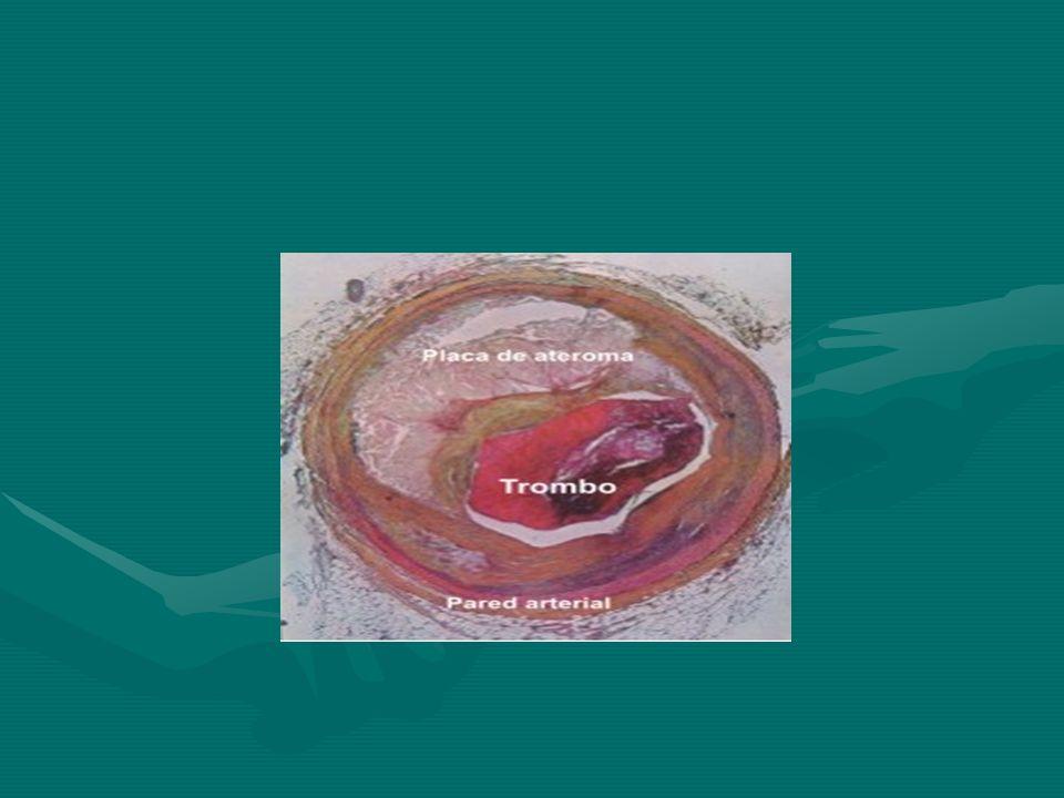 NITRATOS Relajación del músculo liso vascular.Relajación del músculo liso vascular.