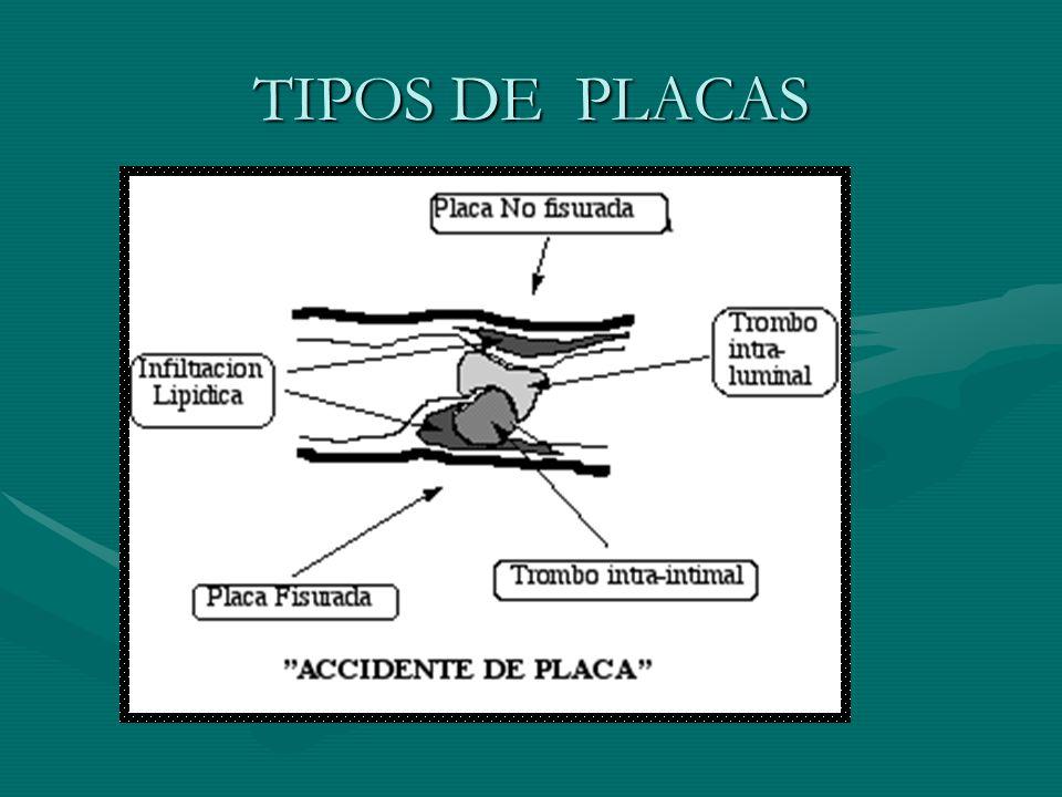 TIPOS DE PLACAS