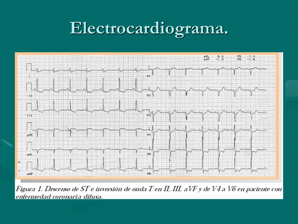 Electrocardiograma.