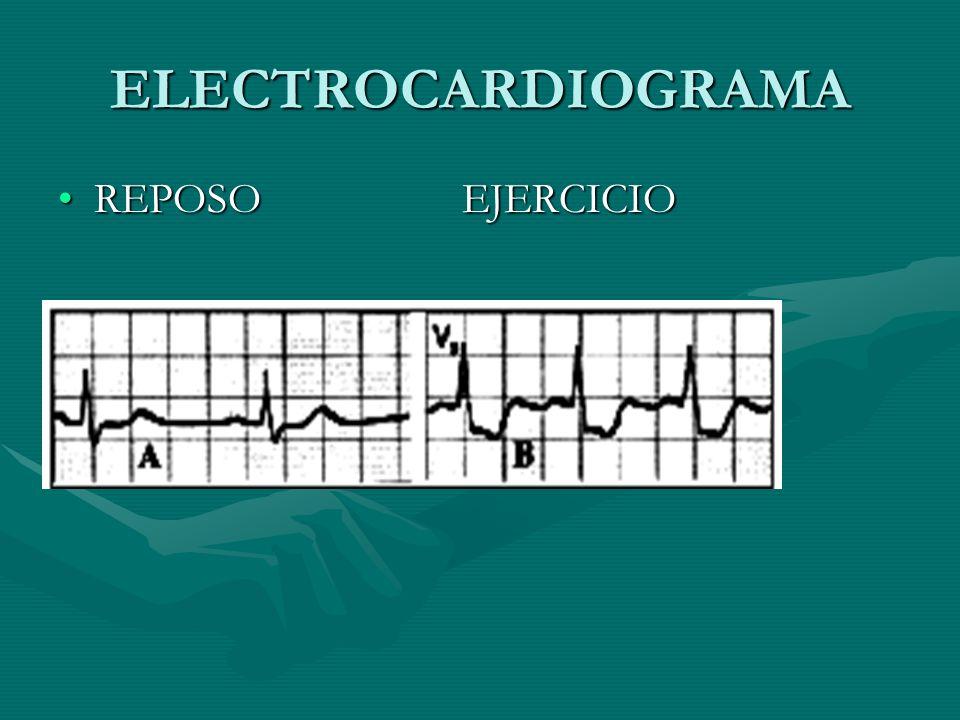 ELECTROCARDIOGRAMA REPOSO EJERCICIOREPOSO EJERCICIO