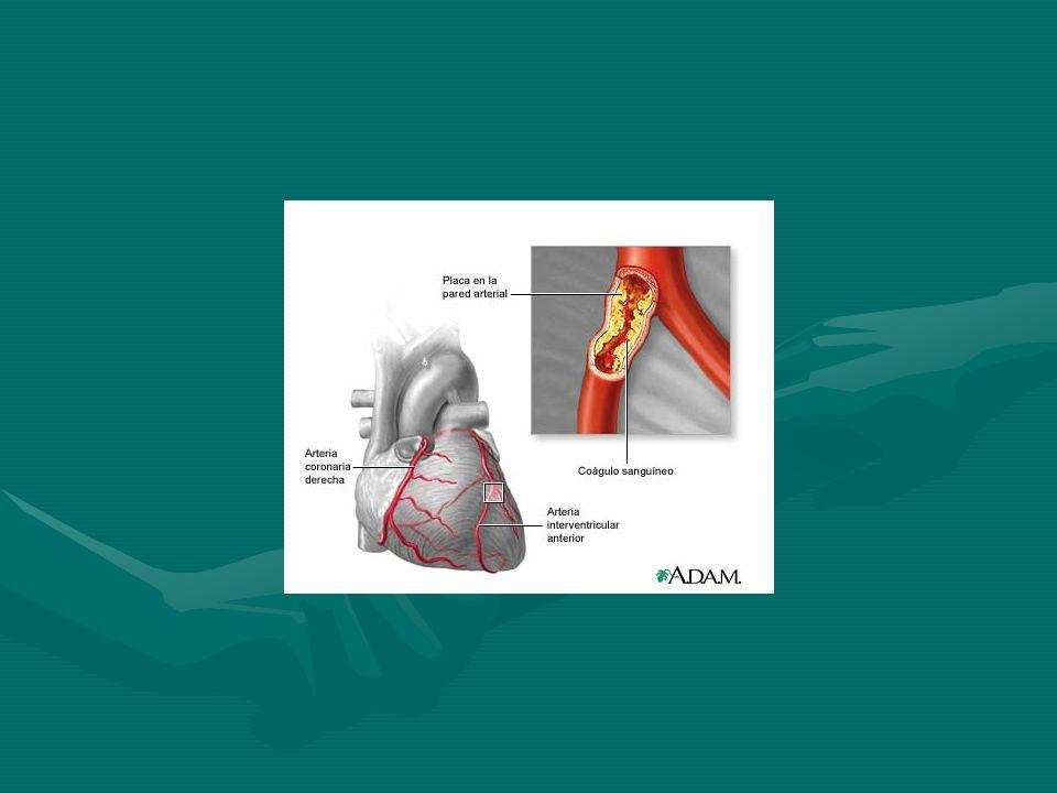 Antagonistas de calcio Inhiben el movimiento de calcio a través de los canales lentos de calcio en las membranas de los miocitos y del músculo liso mediante un bloqueo no competitivo del canal de calcio L sensible de voltaje.Inhiben el movimiento de calcio a través de los canales lentos de calcio en las membranas de los miocitos y del músculo liso mediante un bloqueo no competitivo del canal de calcio L sensible de voltaje.