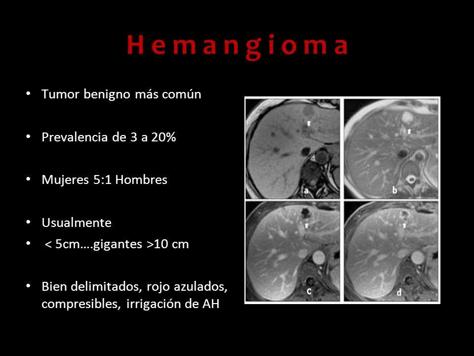 H e m a n g i o m a Tumor benigno más común Prevalencia de 3 a 20% Mujeres 5:1 Hombres Usualmente 10 cm Bien delimitados, rojo azulados, compresibles,