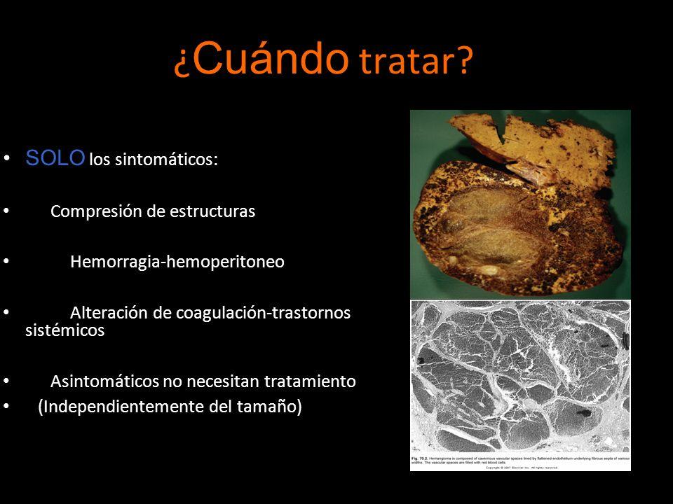 ¿ Cuándo tratar? SOLO los sintomáticos: Compresión de estructuras Hemorragia-hemoperitoneo Alteración de coagulación-trastornos sistémicos Asintomátic