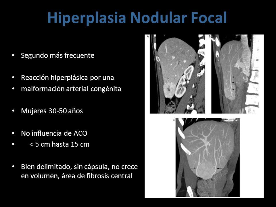 Hiperplasia Nodular Focal Segundo más frecuente Reacción hiperplásica por una malformación arterial congénita Mujeres 30-50 años No influencia de ACO