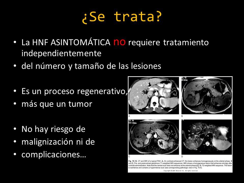 ¿Se trata? La HNF ASINTOMÁTICA no requiere tratamiento independientemente del número y tamaño de las lesiones Es un proceso regenerativo, más que un t