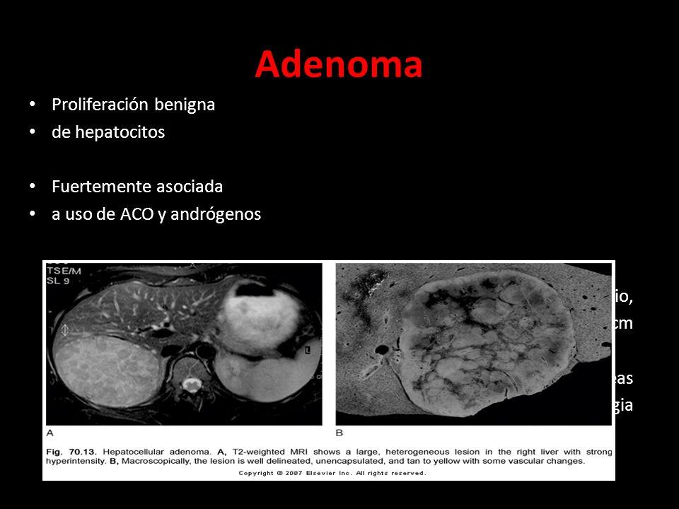Adenoma Proliferación benigna de hepatocitos Fuertemente asociada a uso de ACO y andrógenos Usualmente solitario, de hasta 30 cm Bien delimitado, con