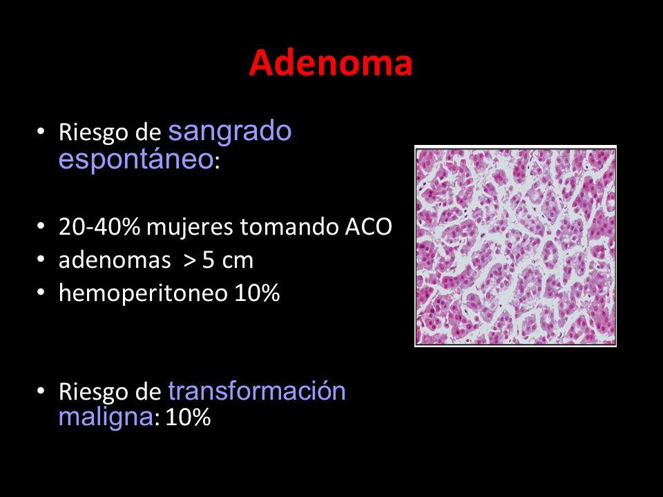 Adenoma Riesgo de sangrado espontáneo : 20-40% mujeres tomando ACO adenomas > 5 cm hemoperitoneo 10% Riesgo de transformación maligna : 10%