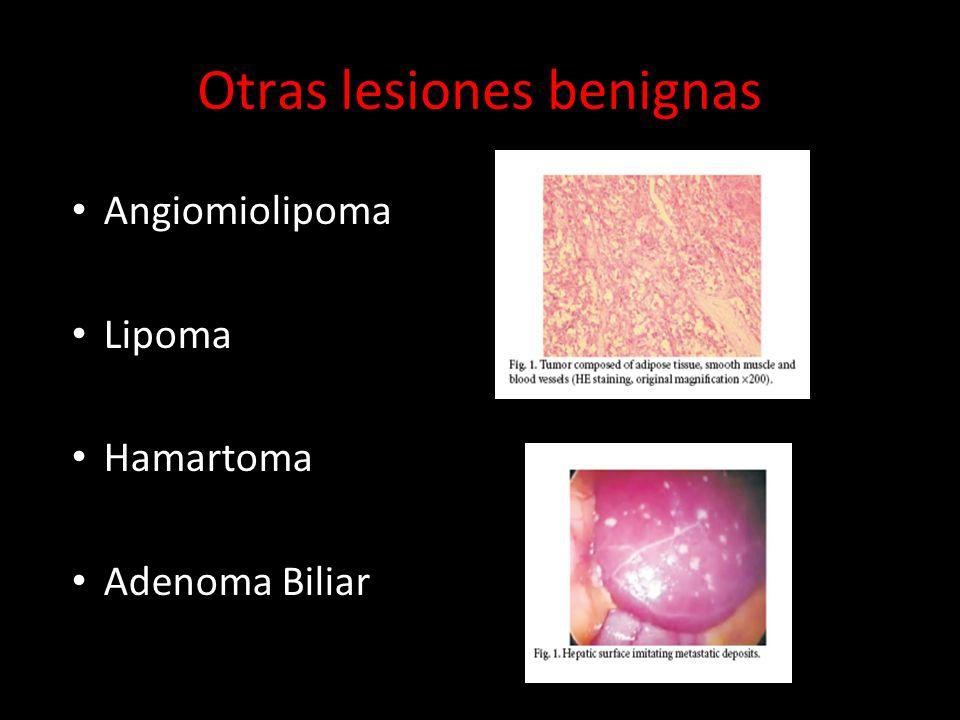 Otras lesiones benignas Angiomiolipoma Lipoma Hamartoma Adenoma Biliar