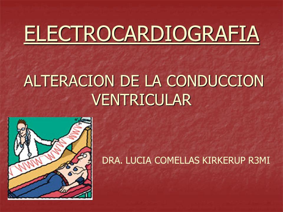 ELECTROCARDIOGRAFIA ALTERACION DE LA CONDUCCION VENTRICULAR DRA. LUCIA COMELLAS KIRKERUP R3MI