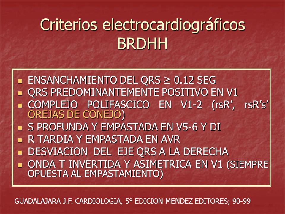 Criterios electrocardiográficos BRDHH ENSANCHAMIENTO DEL QRS 0.12 SEG ENSANCHAMIENTO DEL QRS 0.12 SEG QRS PREDOMINANTEMENTE POSITIVO EN V1 QRS PREDOMI