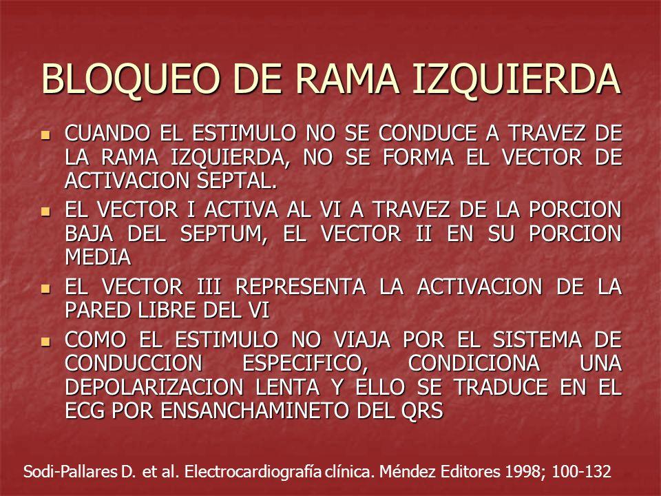 BLOQUEO DE RAMA IZQUIERDA CUANDO EL ESTIMULO NO SE CONDUCE A TRAVEZ DE LA RAMA IZQUIERDA, NO SE FORMA EL VECTOR DE ACTIVACION SEPTAL. CUANDO EL ESTIMU