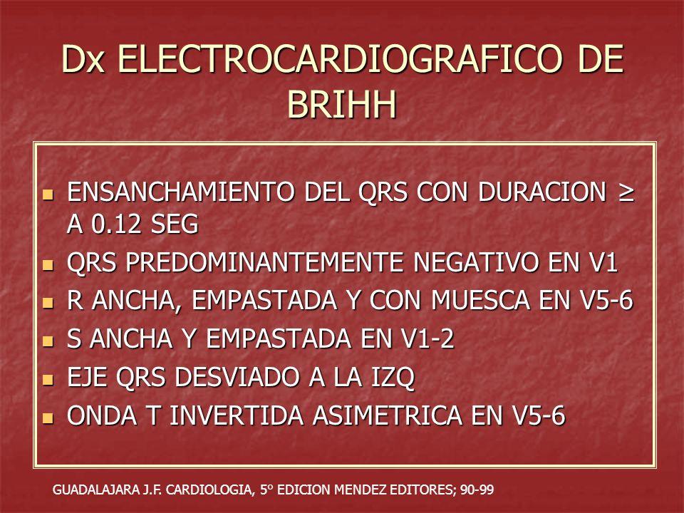 Dx ELECTROCARDIOGRAFICO DE BRIHH ENSANCHAMIENTO DEL QRS CON DURACION A 0.12 SEG ENSANCHAMIENTO DEL QRS CON DURACION A 0.12 SEG QRS PREDOMINANTEMENTE N