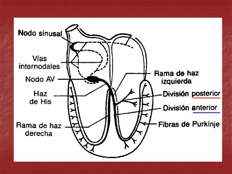 Dx ELECTROCARDIOGRAFICO DE BRIHH ENSANCHAMIENTO DEL QRS CON DURACION A 0.12 SEG ENSANCHAMIENTO DEL QRS CON DURACION A 0.12 SEG QRS PREDOMINANTEMENTE NEGATIVO EN V1 QRS PREDOMINANTEMENTE NEGATIVO EN V1 R ANCHA, EMPASTADA Y CON MUESCA EN V5-6 R ANCHA, EMPASTADA Y CON MUESCA EN V5-6 S ANCHA Y EMPASTADA EN V1-2 S ANCHA Y EMPASTADA EN V1-2 EJE QRS DESVIADO A LA IZQ EJE QRS DESVIADO A LA IZQ ONDA T INVERTIDA ASIMETRICA EN V5-6 ONDA T INVERTIDA ASIMETRICA EN V5-6 GUADALAJARA J.F.