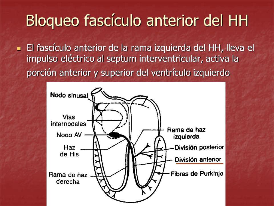 Bloqueo fascículo anterior del HH El fascículo anterior de la rama izquierda del HH, lleva el impulso eléctrico al septum interventricular, activa la