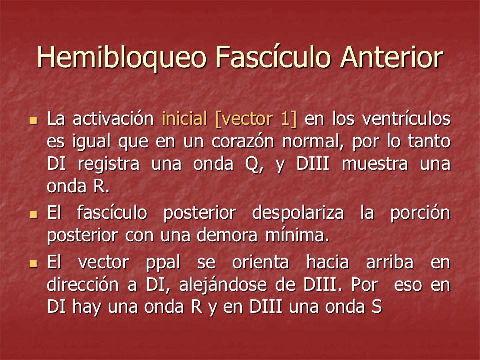 Hemibloqueo Fascículo Anterior La activación inicial [vector 1] en los ventrículos es igual que en un corazón normal, por lo tanto DI registra una ond