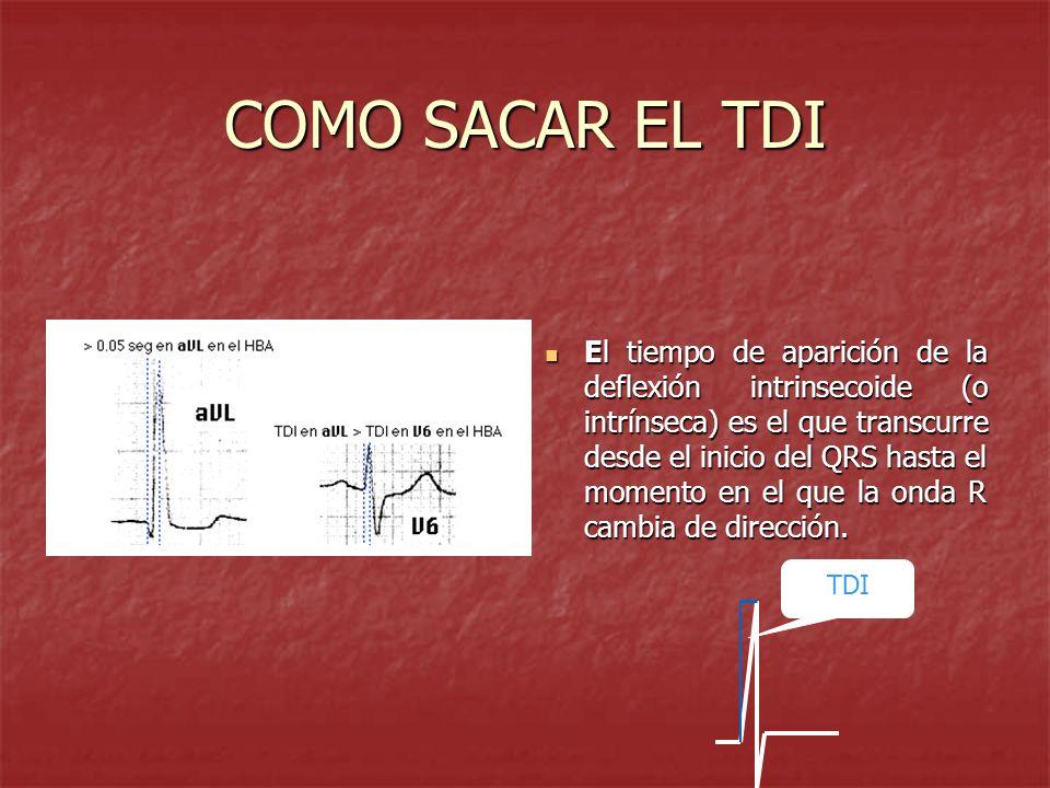 COMO SACAR EL TDI El tiempo de aparición de la deflexión intrinsecoide (o intrínseca) es el que transcurre desde el inicio del QRS hasta el momento en