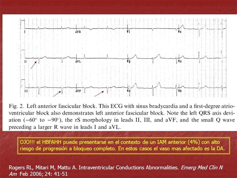 Rogers RL, Mitari M, Mattu A. Intraventricular Conductions Abnormalities. Emerg Med Clin N Am Feb 2006; 24: 41-51 OJO!!! el HBFAHH puede presentarse e