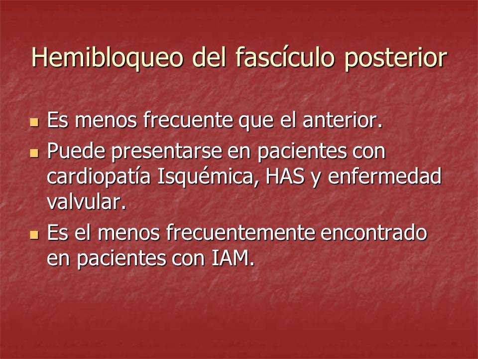 Hemibloqueo del fascículo posterior Es menos frecuente que el anterior. Es menos frecuente que el anterior. Puede presentarse en pacientes con cardiop