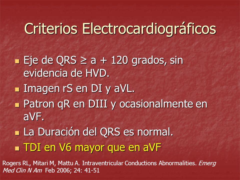 Criterios Electrocardiográficos Eje de QRS a + 120 grados, sin evidencia de HVD. Eje de QRS a + 120 grados, sin evidencia de HVD. Imagen rS en DI y aV