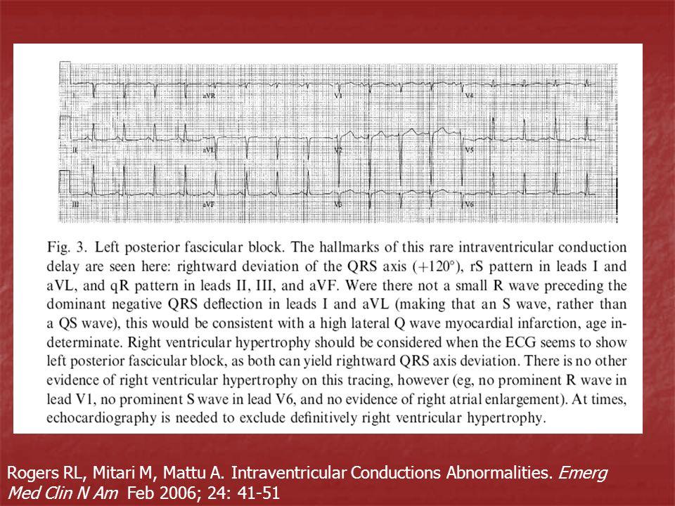 Rogers RL, Mitari M, Mattu A. Intraventricular Conductions Abnormalities. Emerg Med Clin N Am Feb 2006; 24: 41-51