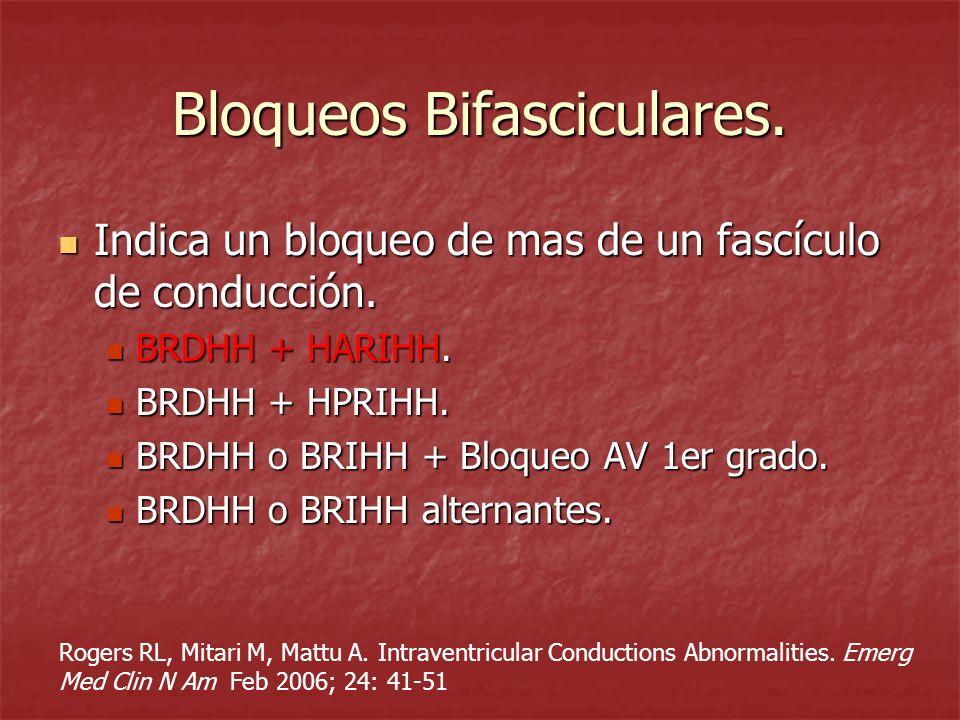 Bloqueos Bifasciculares. Indica un bloqueo de mas de un fascículo de conducción. Indica un bloqueo de mas de un fascículo de conducción. BRDHH + HARIH