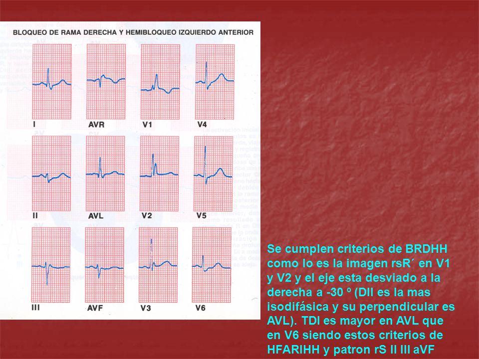 Se cumplen criterios de BRDHH como lo es la imagen rsR´ en V1 y V2 y el eje esta desviado a la derecha a -30 º (DII es la mas isodifásica y su perpend