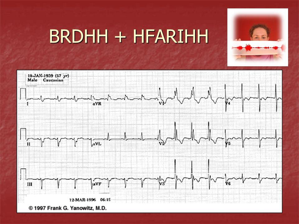 BRDHH + HFARIHH BRDHH + HFARIHH