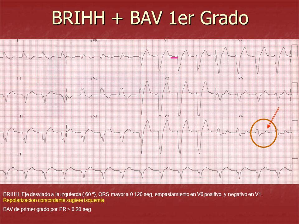 BRIHH + BAV 1er Grado BRIHH. Eje desviado a la izquierda (-60 º), QRS mayor a 0.120 seg, empastamiento en V6 positivo, y negativo en V1. Repolarizacio
