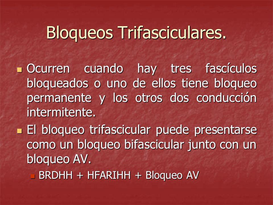 Bloqueos Trifasciculares. Ocurren cuando hay tres fascículos bloqueados o uno de ellos tiene bloqueo permanente y los otros dos conducción intermitent