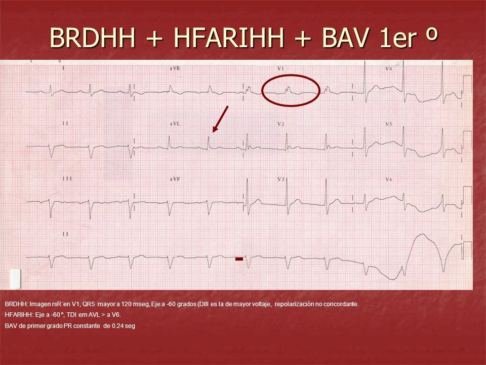 BRDHH + HFARIHH + BAV 1er º BRDHH: Imagen rsR´en V1, QRS mayor a 120 mseg, Eje a -60 grados (DIII es la de mayor voltaje, repolarización no concordant