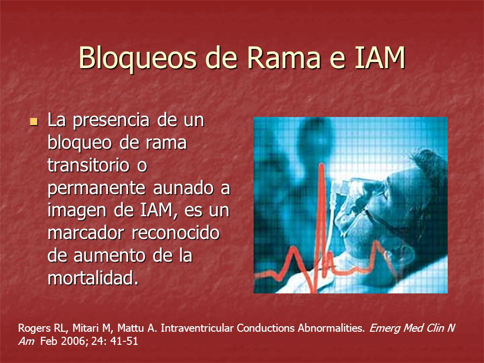 Bloqueos de Rama e IAM La presencia de un bloqueo de rama transitorio o permanente aunado a imagen de IAM, es un marcador reconocido de aumento de la