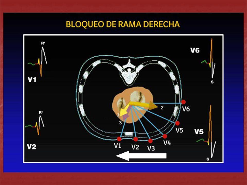 Rogers RL, Mitari M, Mattu A.Intraventricular Conductions Abnormalities.