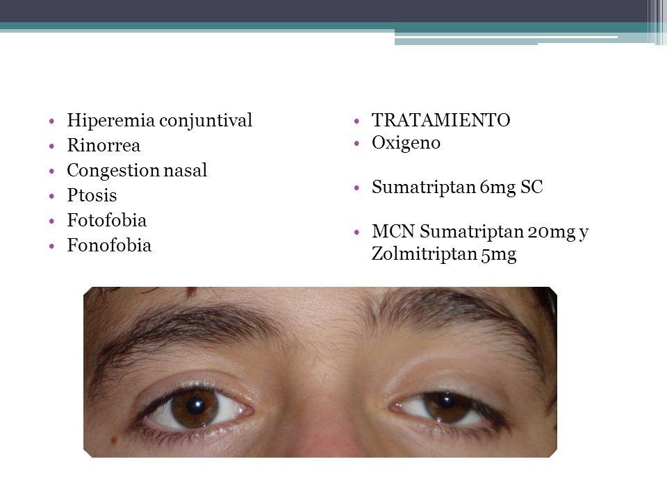 Hiperemia conjuntival Rinorrea Congestion nasal Ptosis Fotofobia Fonofobia TRATAMIENTO Oxigeno Sumatriptan 6mg SC MCN Sumatriptan 20mg y Zolmitriptan
