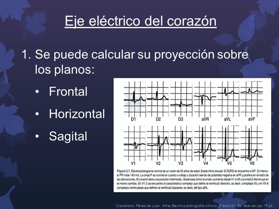 Eje eléctrico del corazón 1.Se puede calcular su proyección sobre los planos: Frontal Horizontal Sagital Castellano, Pérez de Juan, Attie. Electrocard