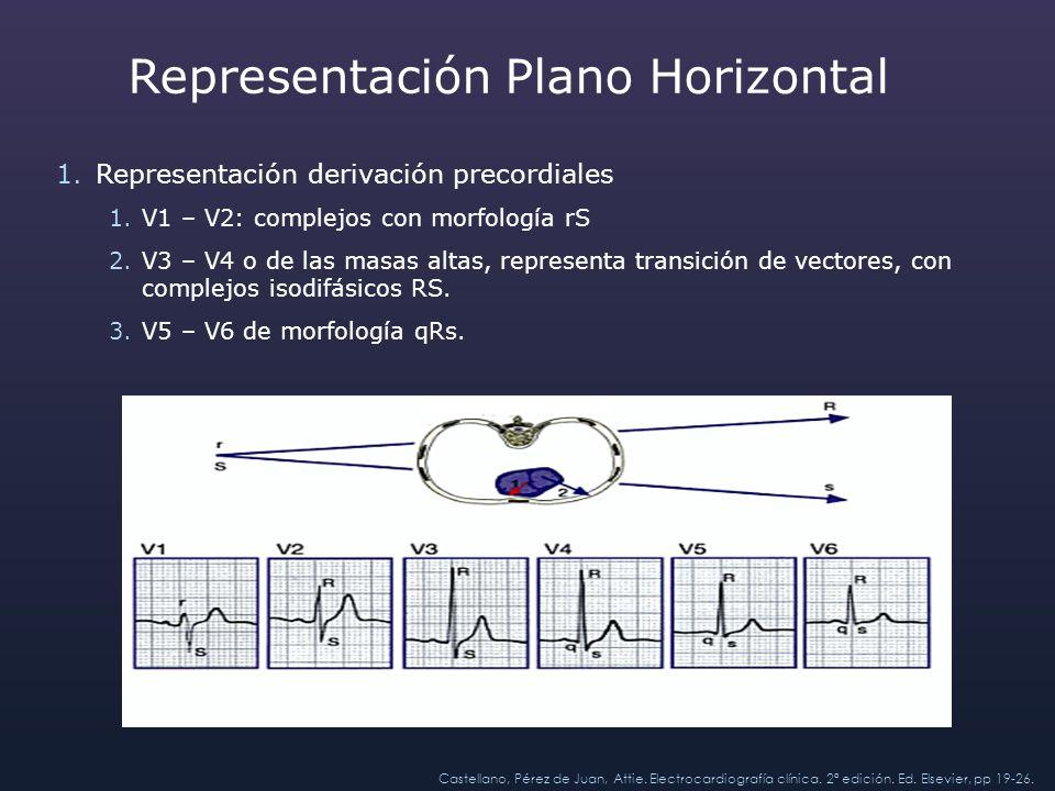 Representación Plano Horizontal 1.Representación derivación precordiales 1.V1 – V2: complejos con morfología rS 2.V3 – V4 o de las masas altas, repres