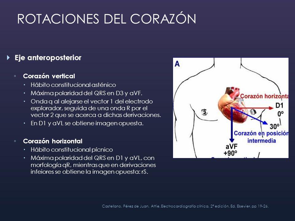 Eje anteroposterior Corazón vertical Hábito constitucional asténico Máxima polaridad del QRS en D3 y aVF. Onda q al alejarse el vector 1 del electrodo