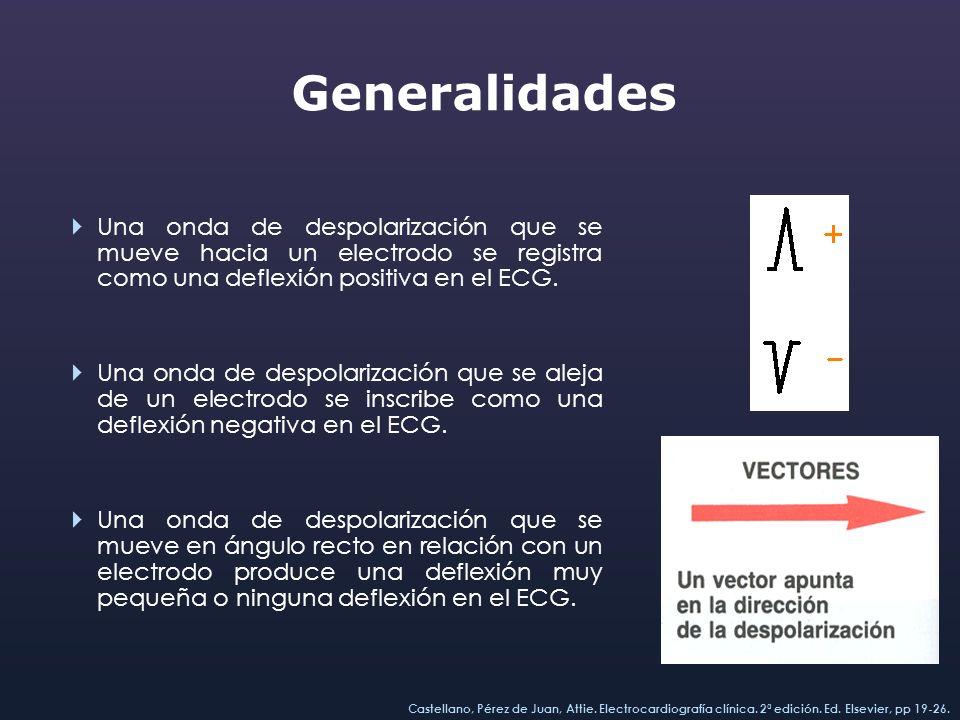 Generalidades Una onda de despolarización que se mueve hacia un electrodo se registra como una deflexión positiva en el ECG. Una onda de despolarizaci