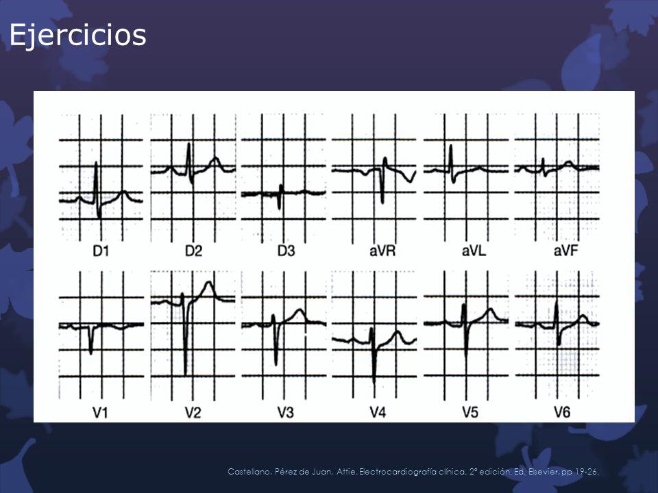 Ejercicios Castellano, Pérez de Juan, Attie. Electrocardiografía clínica. 2ª edición. Ed. Elsevier, pp 19-26.