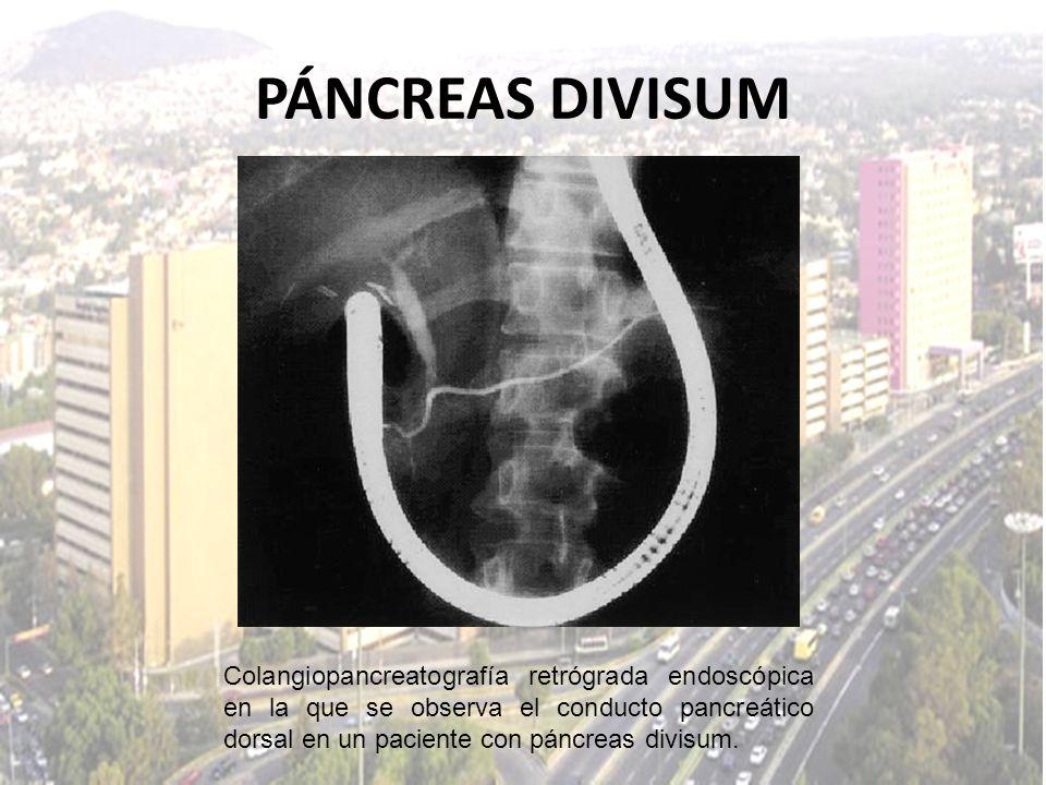 PÁNCREAS DIVISUM Colangiopancreatografía retrógrada endoscópica en la que se observa el conducto pancreático dorsal en un paciente con páncreas divisu