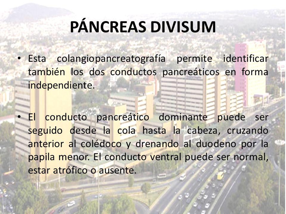 PÁNCREAS DIVISUM Esta colangiopancreatografía permite identificar también los dos conductos pancreáticos en forma independiente. El conducto pancreáti