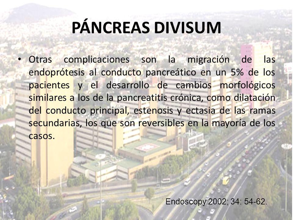 PÁNCREAS DIVISUM Otras complicaciones son la migración de las endoprótesis al conducto pancreático en un 5% de los pacientes y el desarrollo de cambio