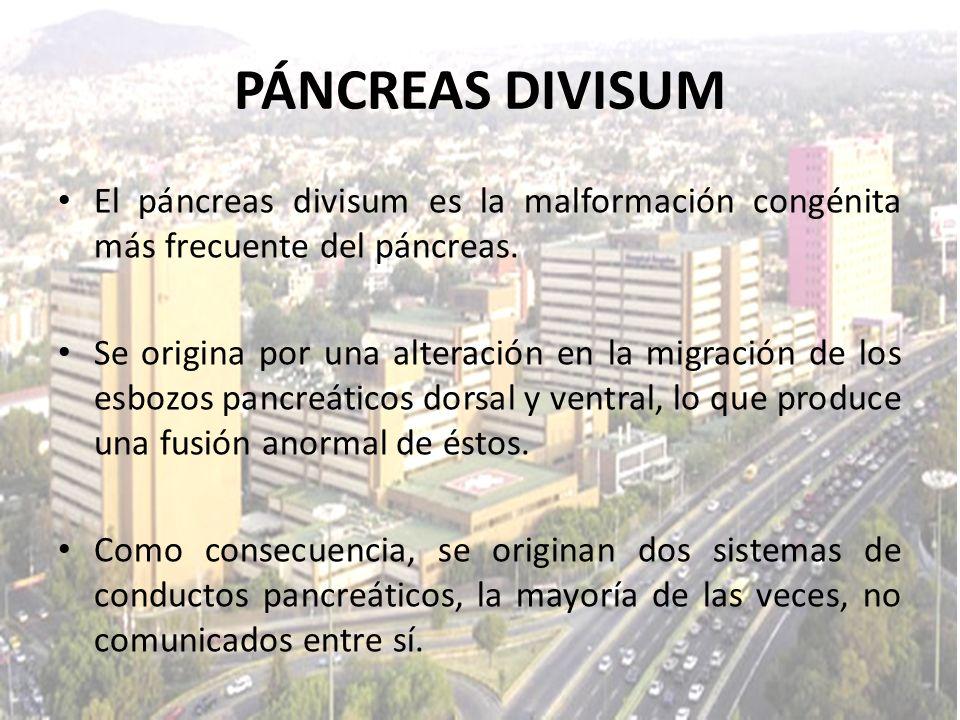 El páncreas divisum es la malformación congénita más frecuente del páncreas. Se origina por una alteración en la migración de los esbozos pancreáticos