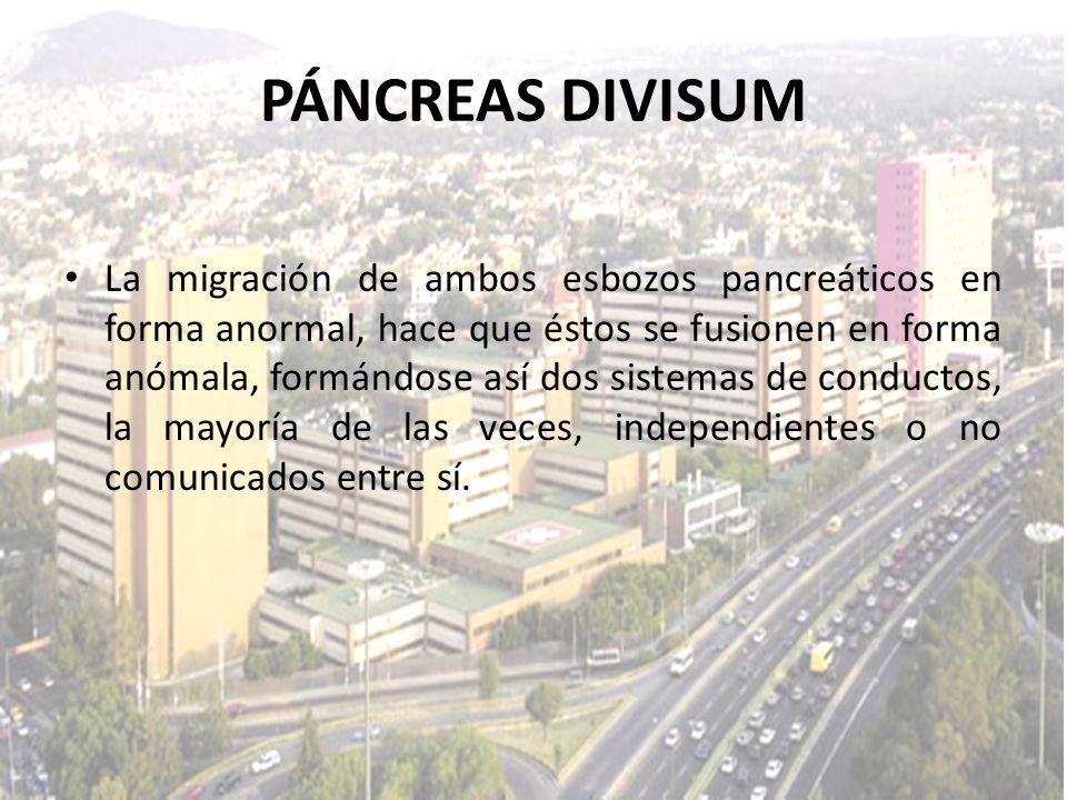 La migración de ambos esbozos pancreáticos en forma anormal, hace que éstos se fusionen en forma anómala, formándose así dos sistemas de conductos, la