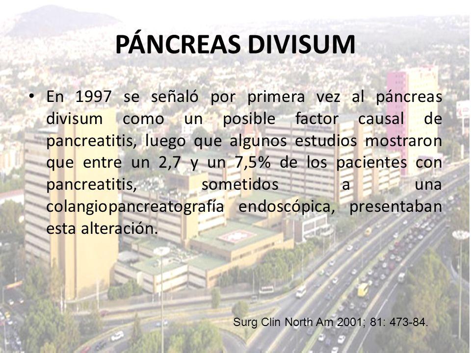 En 1997 se señaló por primera vez al páncreas divisum como un posible factor causal de pancreatitis, luego que algunos estudios mostraron que entre un