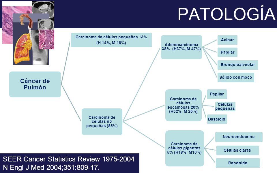 PATOLOGÍA SEER Cancer Statistics Review 1975-2004 N Engl J Med 2004;351:809-17. Cáncer de Pulmón Carcinoma de células no pequeñas (85%) Adenocarcinoma