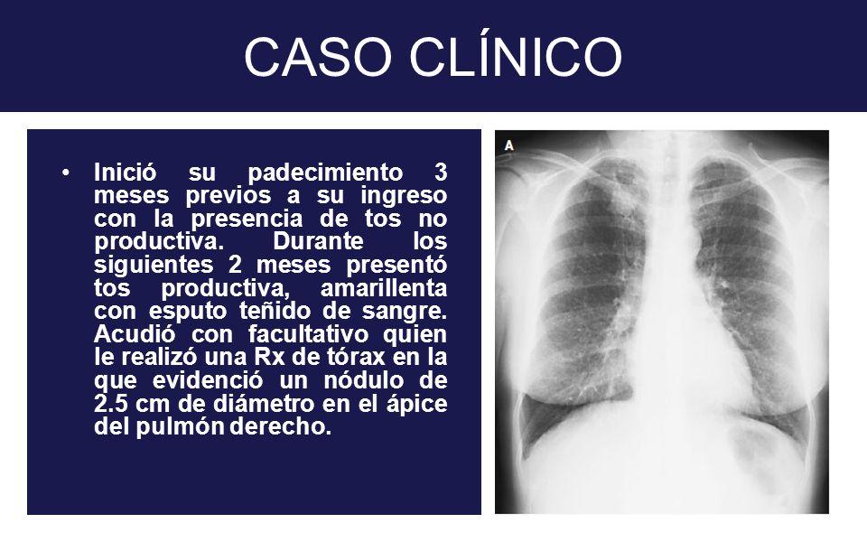 CASO CLÍNICO Inició su padecimiento 3 meses previos a su ingreso con la presencia de tos no productiva. Durante los siguientes 2 meses presentó tos pr