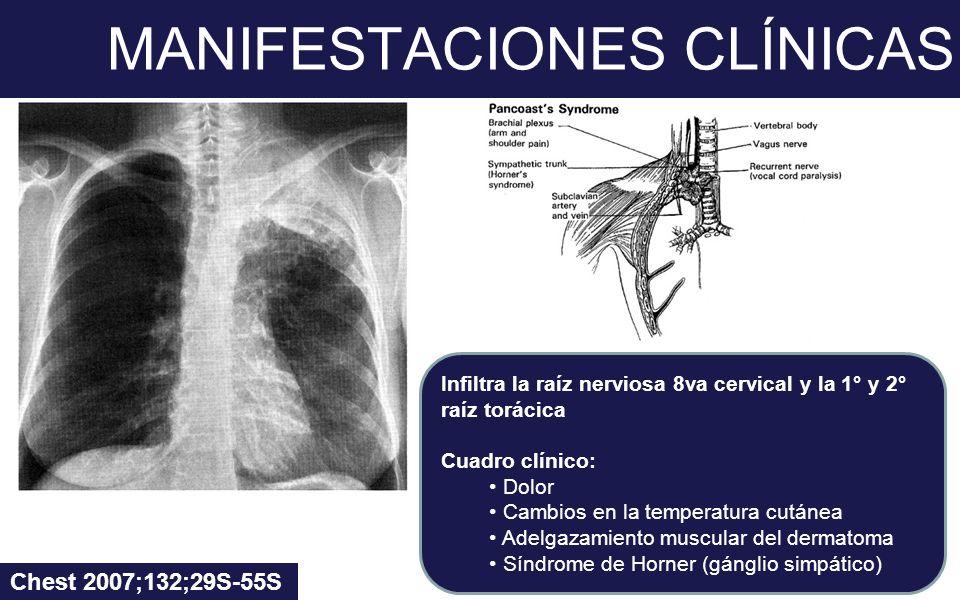 MANIFESTACIONES CLÍNICAS Chest 2007;132;29S-55S Infiltra la raíz nerviosa 8va cervical y la 1° y 2° raíz torácica Cuadro clínico: Dolor Cambios en la