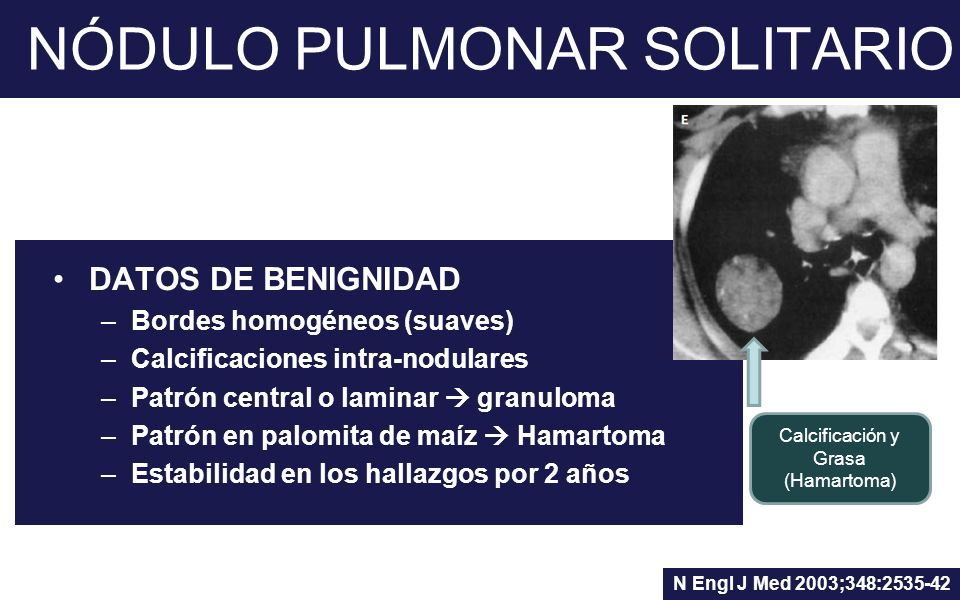 NÓDULO PULMONAR SOLITARIO DATOS DE BENIGNIDAD –Bordes homogéneos (suaves) –Calcificaciones intra-nodulares –Patrón central o laminar granuloma –Patrón