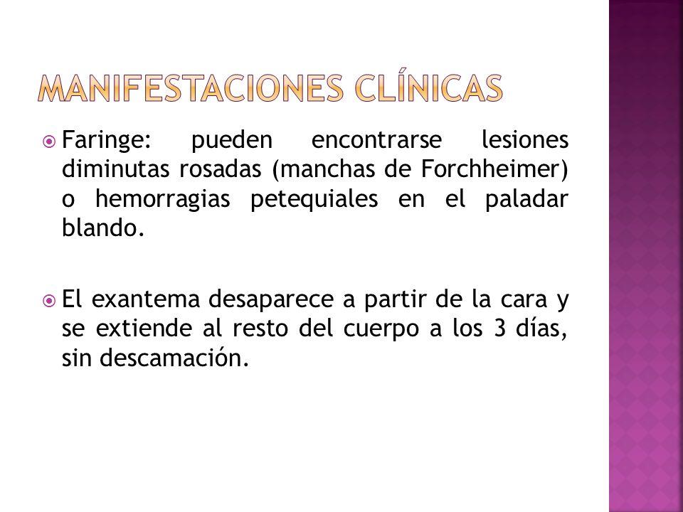 Faringe: pueden encontrarse lesiones diminutas rosadas (manchas de Forchheimer) o hemorragias petequiales en el paladar blando. El exantema desaparece