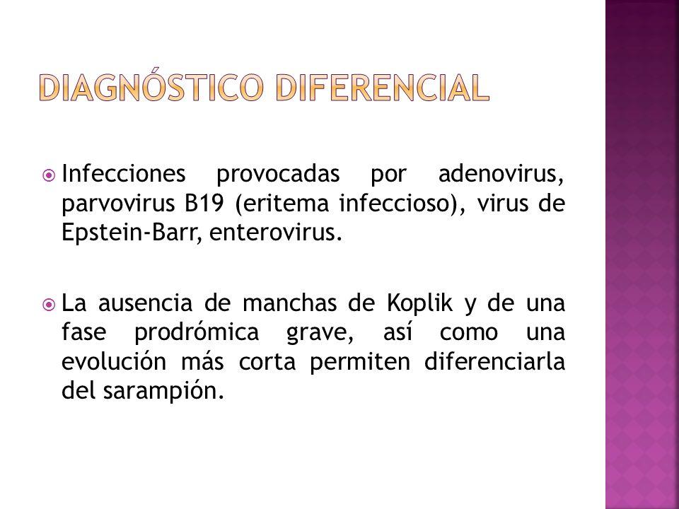 Infecciones provocadas por adenovirus, parvovirus B19 (eritema infeccioso), virus de Epstein-Barr, enterovirus. La ausencia de manchas de Koplik y de